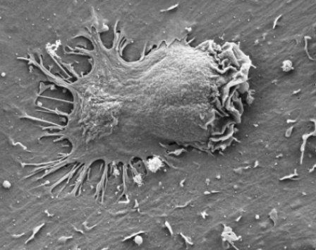 Electron microscope image of an effector cell inserting several appendages through endothelial cell membranes
