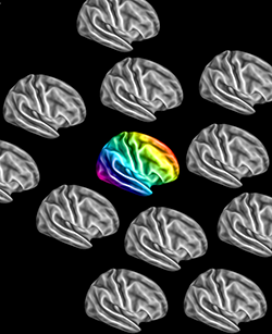 Autistic brains go their own way