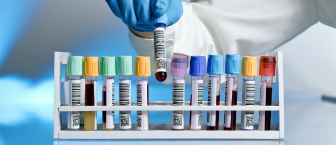 Blood Test for Alzheimers