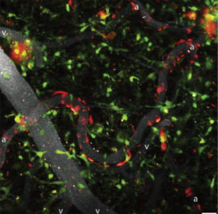 The Scientist_neuroimmunity